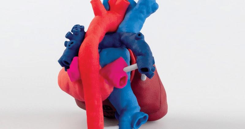 Η 3D Systems συνεργάζεται με το ίδρυμα OpHeart προσφέροντας φιλανθρωπικά 3D εκτυπώσεις